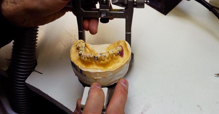 denture repairs canberra gunghalin wanniassa