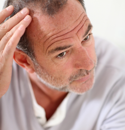 A man inspects his hair loss