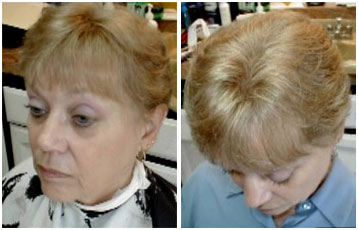 Before and after of a woman's hair treatment