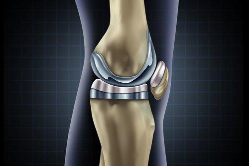 immagine di ossa della gamba
