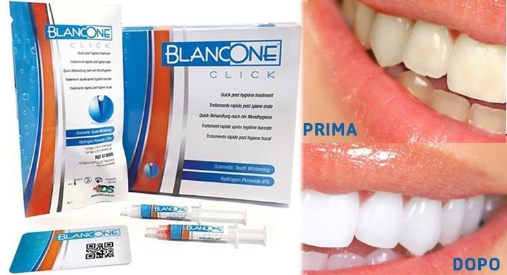 soluzioni per denti blancone