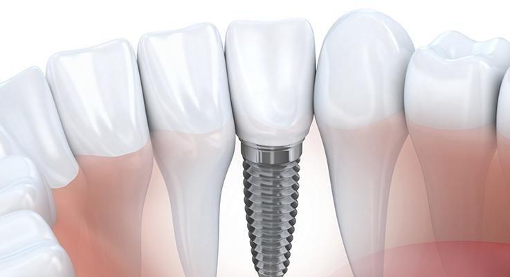 illustrazione di implantologia dentale
