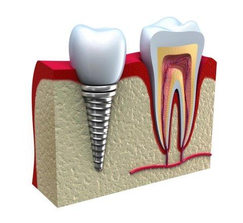 illustrazione 3d di impianto dentale su misura