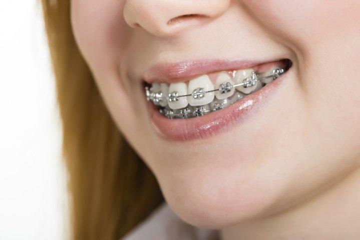apparecchi ortodontici, apparecchi per denti, cure dentali