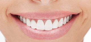 igiene-dentale-ed-estetica