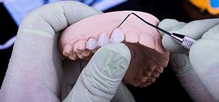 protesi-fissa-e-mobile