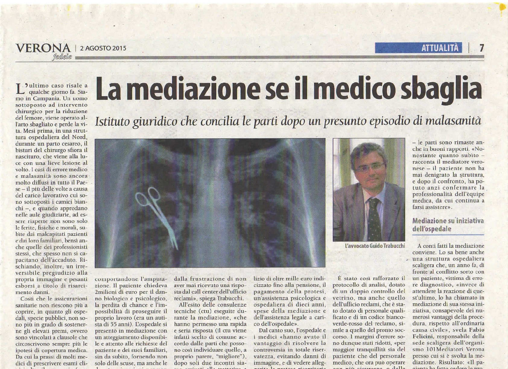 Articolo di giornale con radiografia