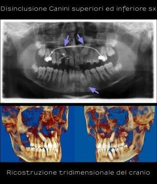 Chirurgia orale