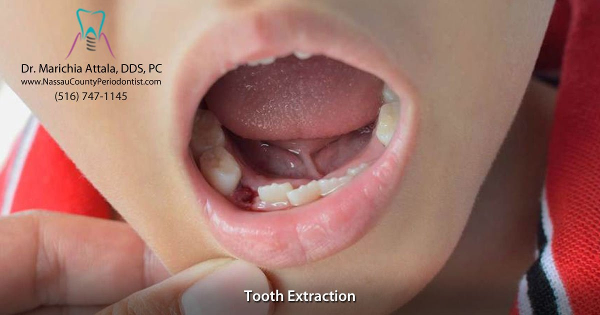 Tooth Extraction By Periodontist Dr Marichia Attalla