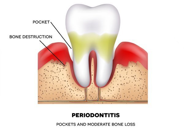 10 Facts About Periodontitis You May Not Know