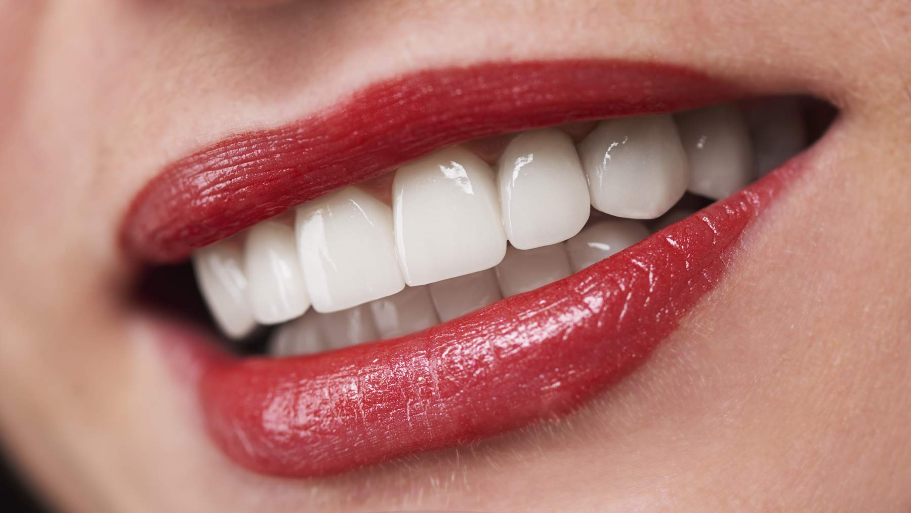 All-On-4 Dental Implants - New Teeth in a Day!