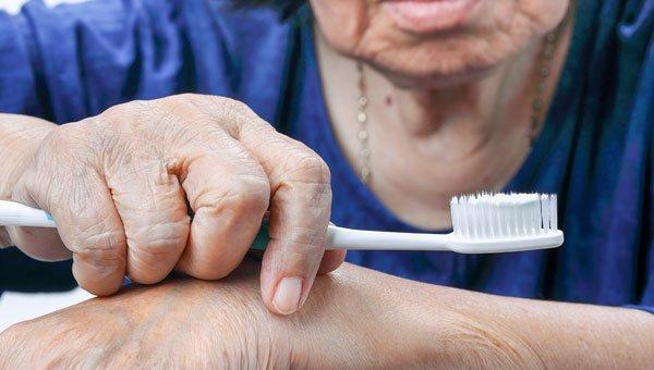 Link Between Periodontal Disease and Arthritis