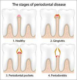 Treatment of Periodontal Disease by Nassau County Periodontist Dr. Marichia Attalla would be needed for the gum disease shown.