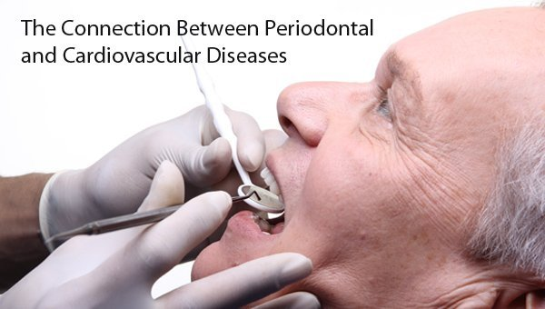 Periodontal and Cardiovascular Disease Connection