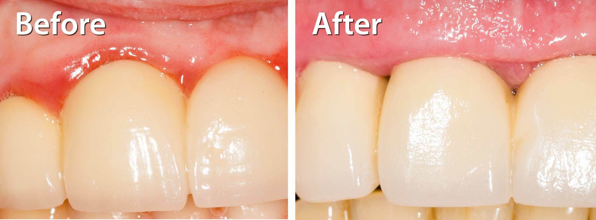Cosmetic Crown Lengthening by Nassau County Periodontist Dr. Marichia Attalla