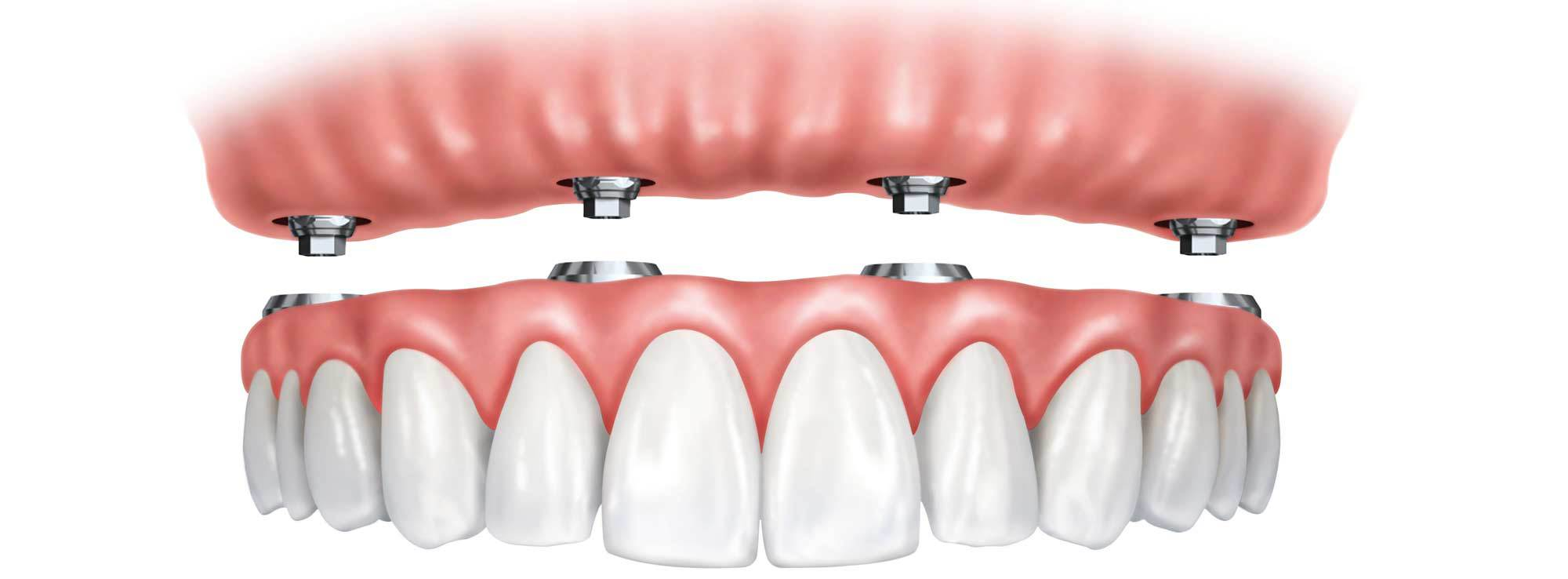 Implant Overdentures by Nassau County Periodontist Dr. Marichia Attalla