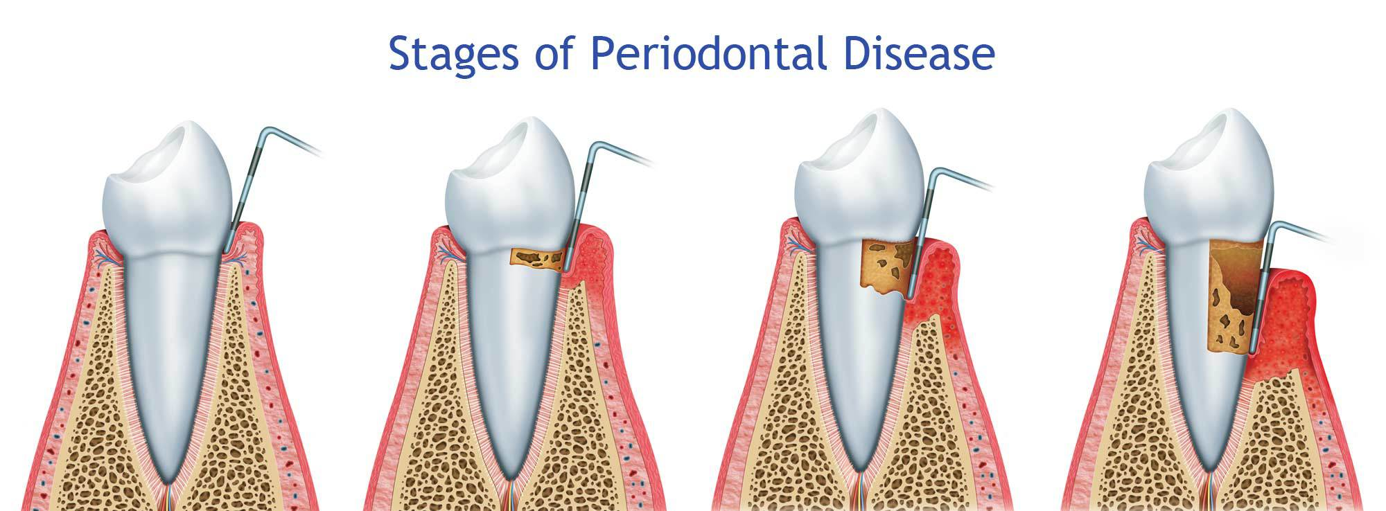 Periodontal Disease Treatment by Nassau County Periodontist Dr. Marichia Attalla