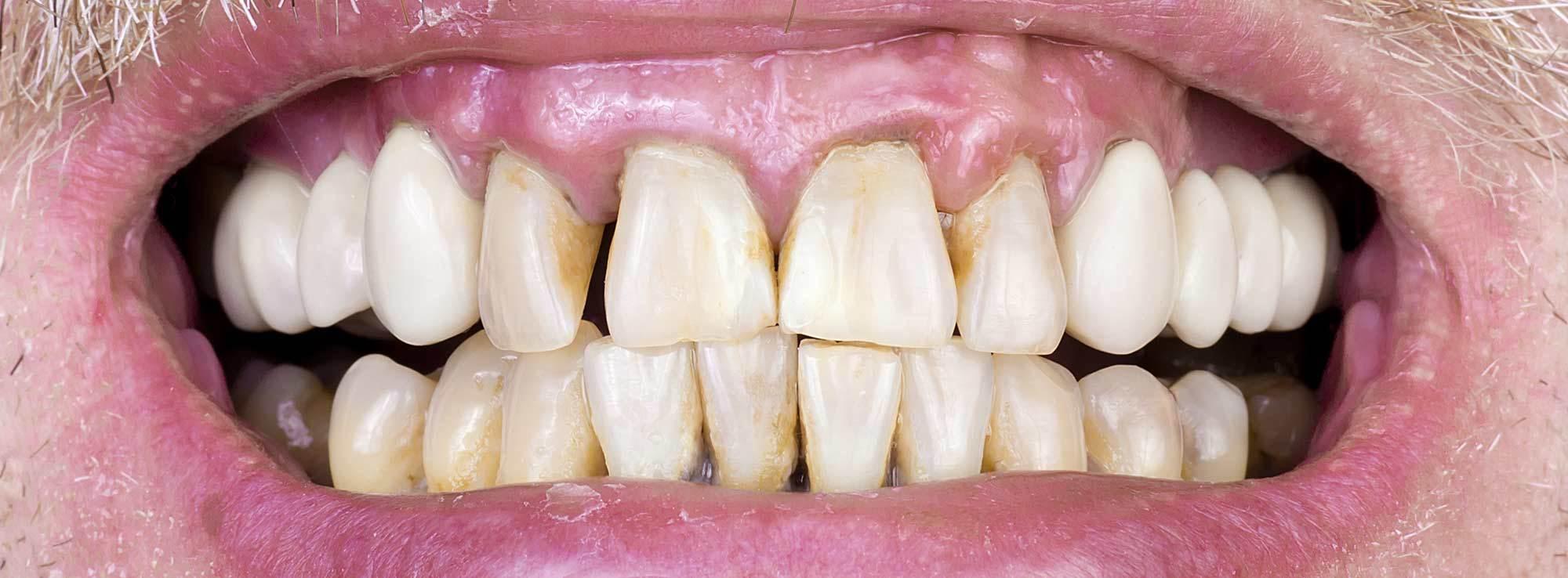 Receding Gum Treatment by Nassau County Periodontist Dr. Marichia Attalla