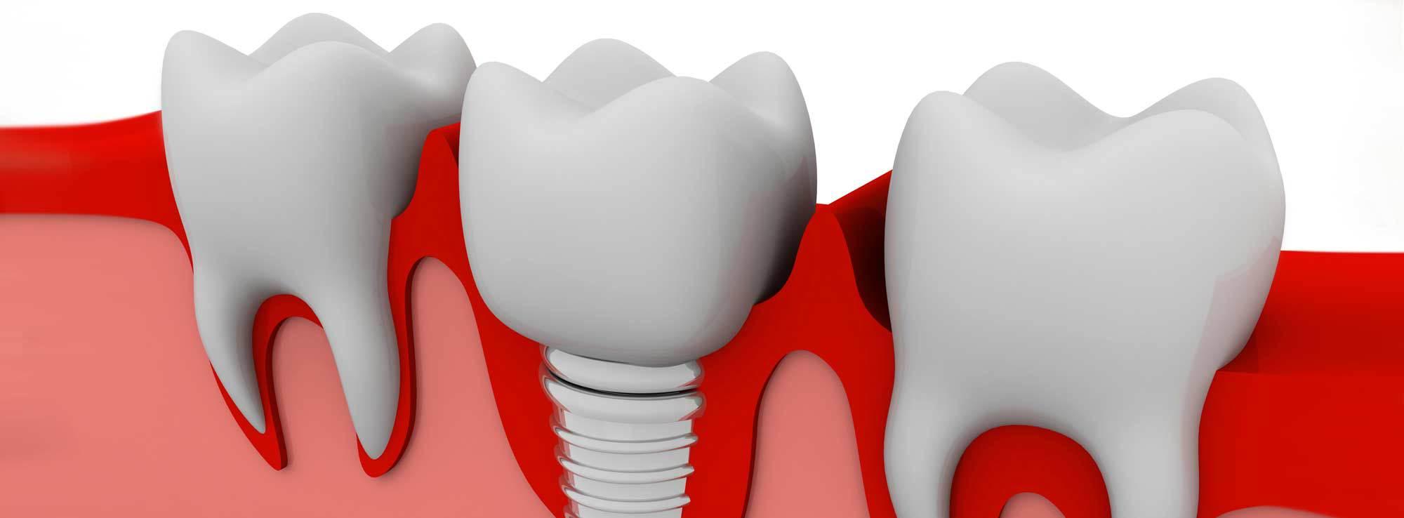 Bone Grafting Treatment by Nassau County Periodontist Dr. Marichia Attalla