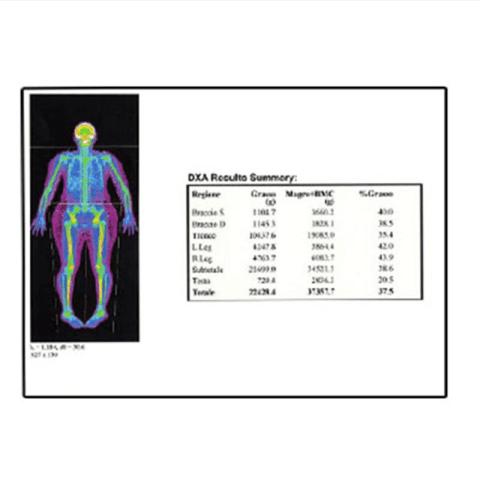 Densiometria Ossea