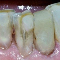 danni ai denti