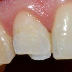 frattura denti