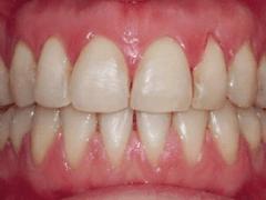 trattamenti per la cura dei denti