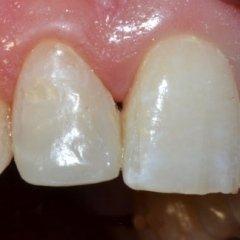 ricostruzione denti danneggiati
