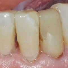 denti con faccette applicate
