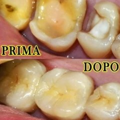 ricostruzioni denti cariati