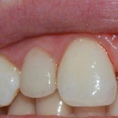 dente in ceramica