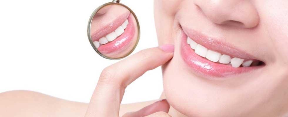 Igiene orale Novara