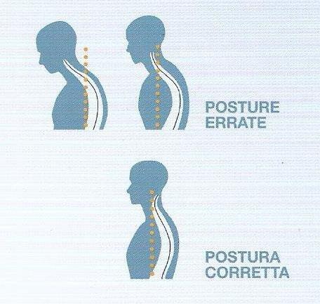 Posture errate
