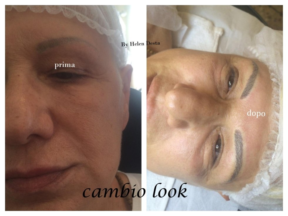 prima e dopo un intervento per ritoccare le sopracciglia