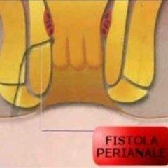 fistole anali