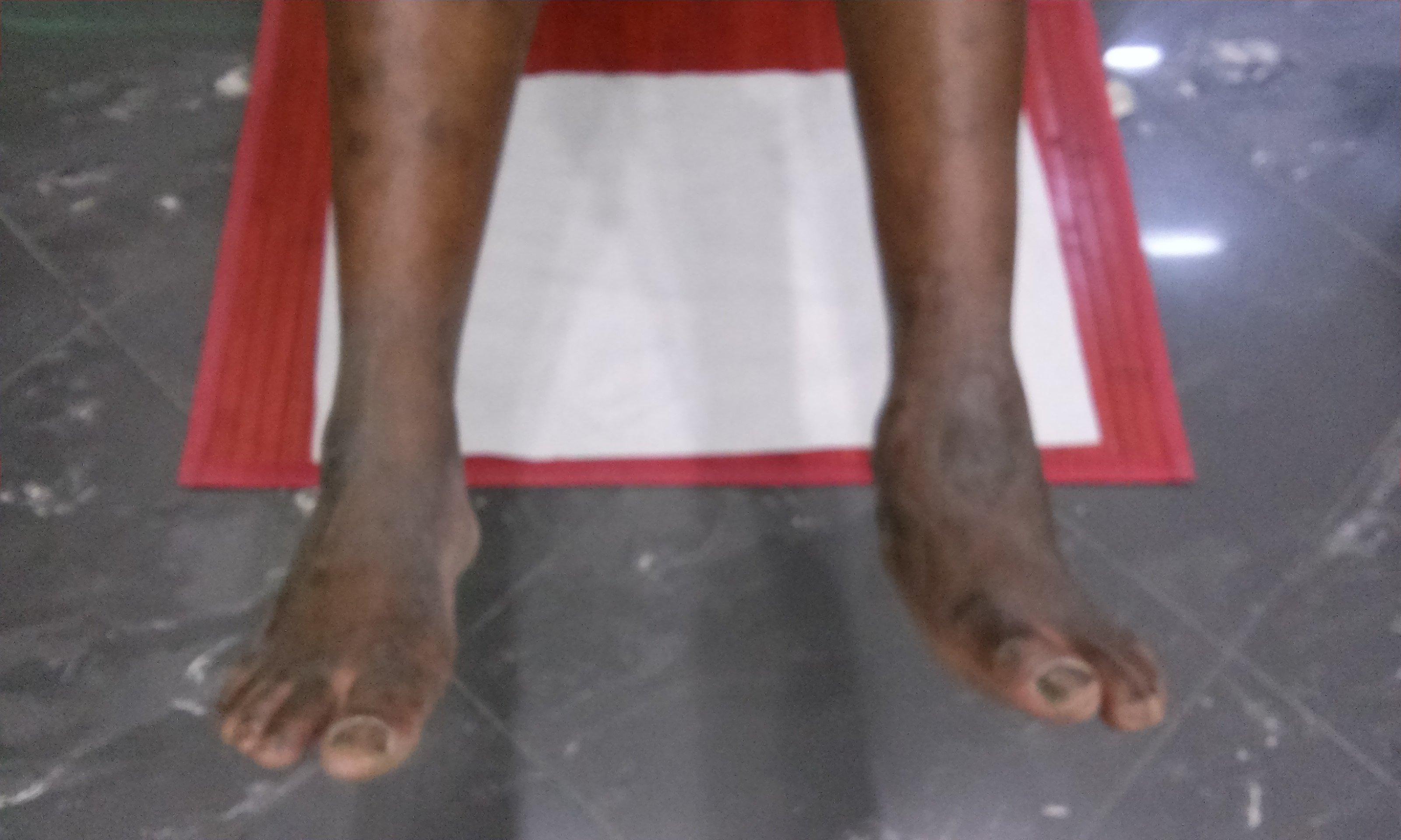 vista frontale dei piedi di una persona