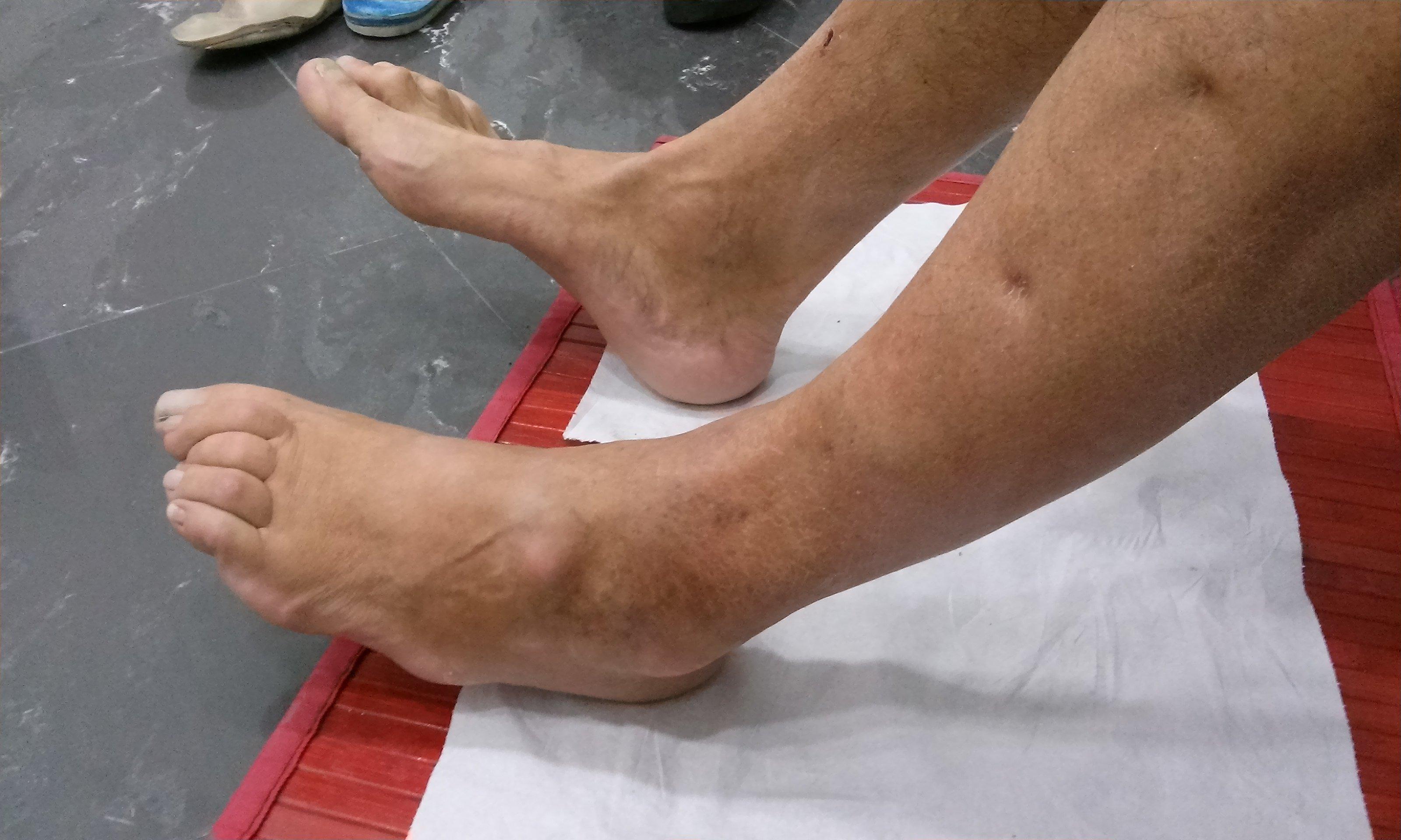 piedi di una persona