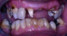 Dental practice - Ferndown, Dorset - Nigel Stribling & Associates - Teeth