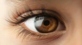 miopia, ipermetropia, astigmatismo