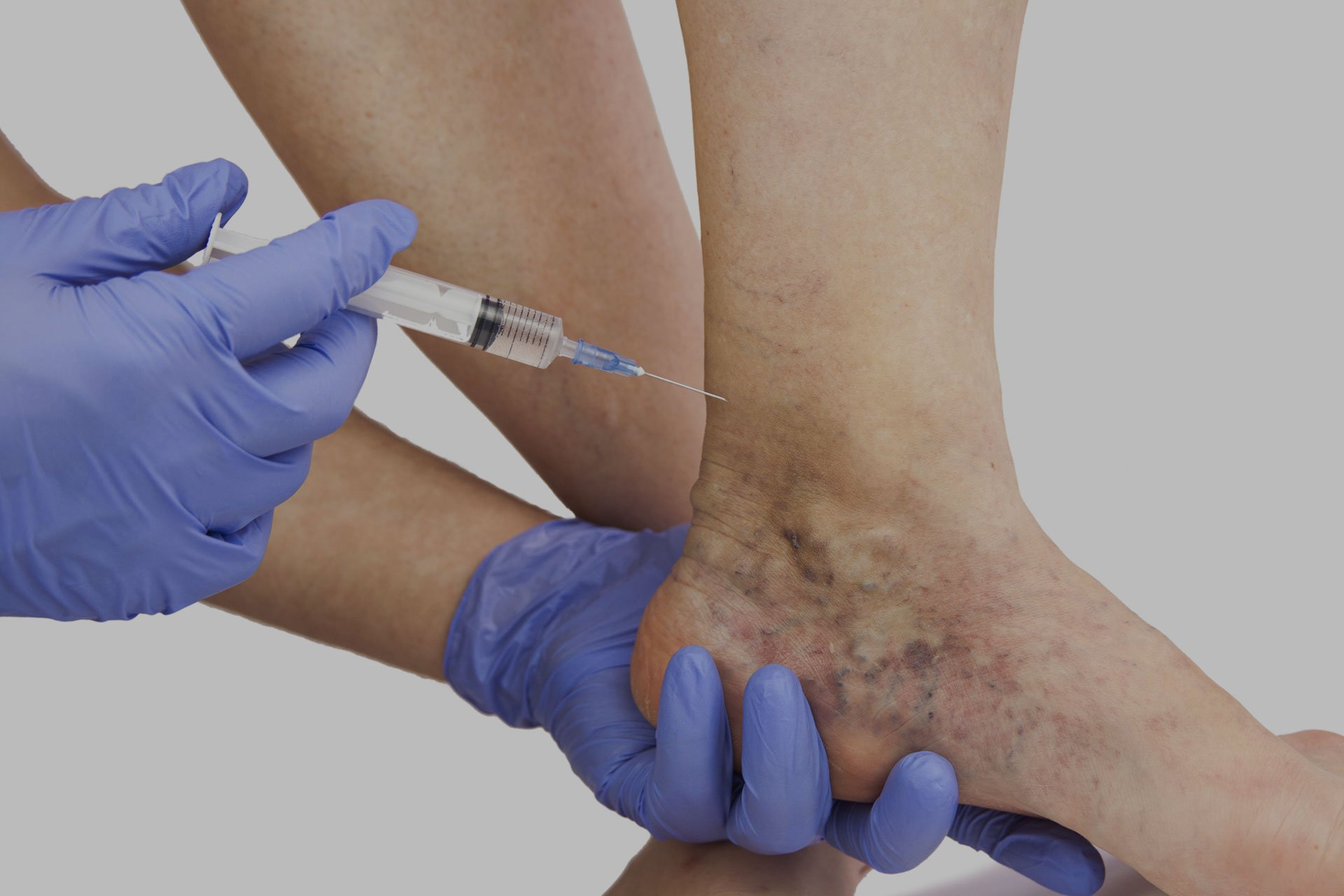 Spider Vein Removal in Bradford, PA & Buffalo, NY - DiMarco Vein Center