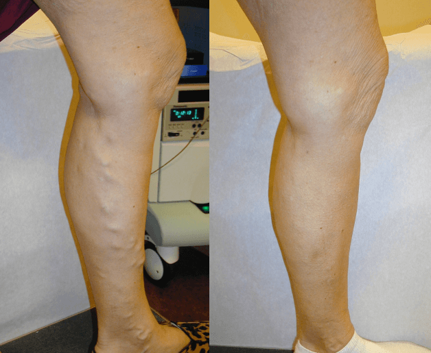 Varicose Veins Treatment in Jamestown, NY - DiMarco Vein Center