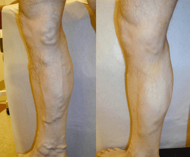 Varicose Veins Treatment in Fredonia, NY - DiMarco Vein Center
