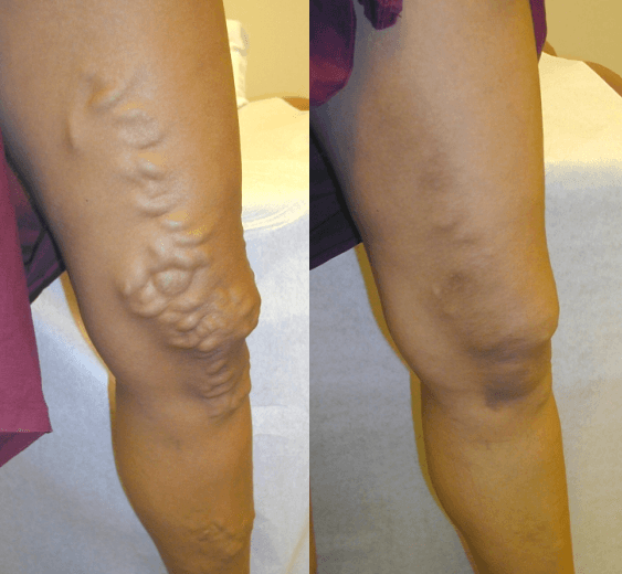 Spider Vein Removal in Erie, PA - DiMarco Vein Center