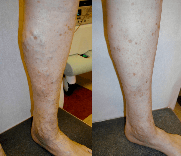 Varicose Veins Removal in Olean, NY & Corry, PA - DiMarco Vein Center