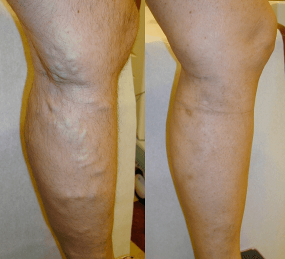 Varicose Veins Removal in Bradford, PA - DiMarco Vein Center