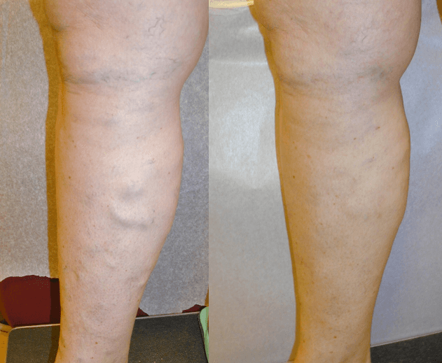 Spider Vein Removal in Wellsville, NY - DiMarco Vein Center