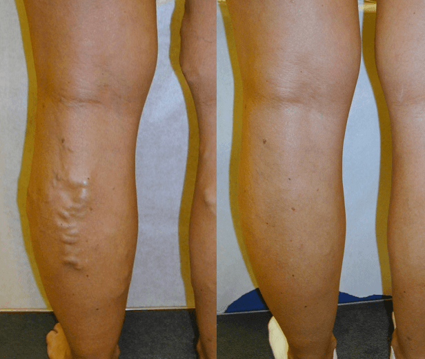 Varicose Vein Removal in Ellicottville, NY - DiMarco Vein Center