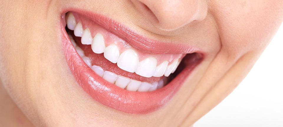 Close view of a lady's smiling mouth with white teeth