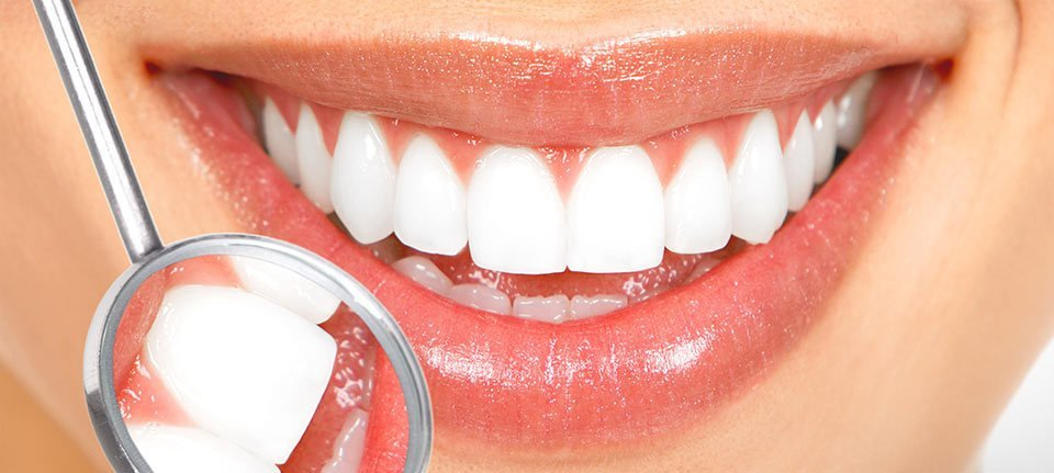 A dental mirror held against the mouth of a lady with dazzling white teeth and peach lipstick