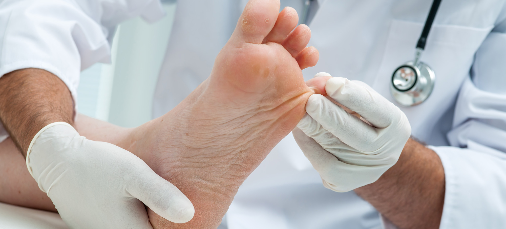 Specialist foot doctor to solve your feet problems in Onerahi, NZ